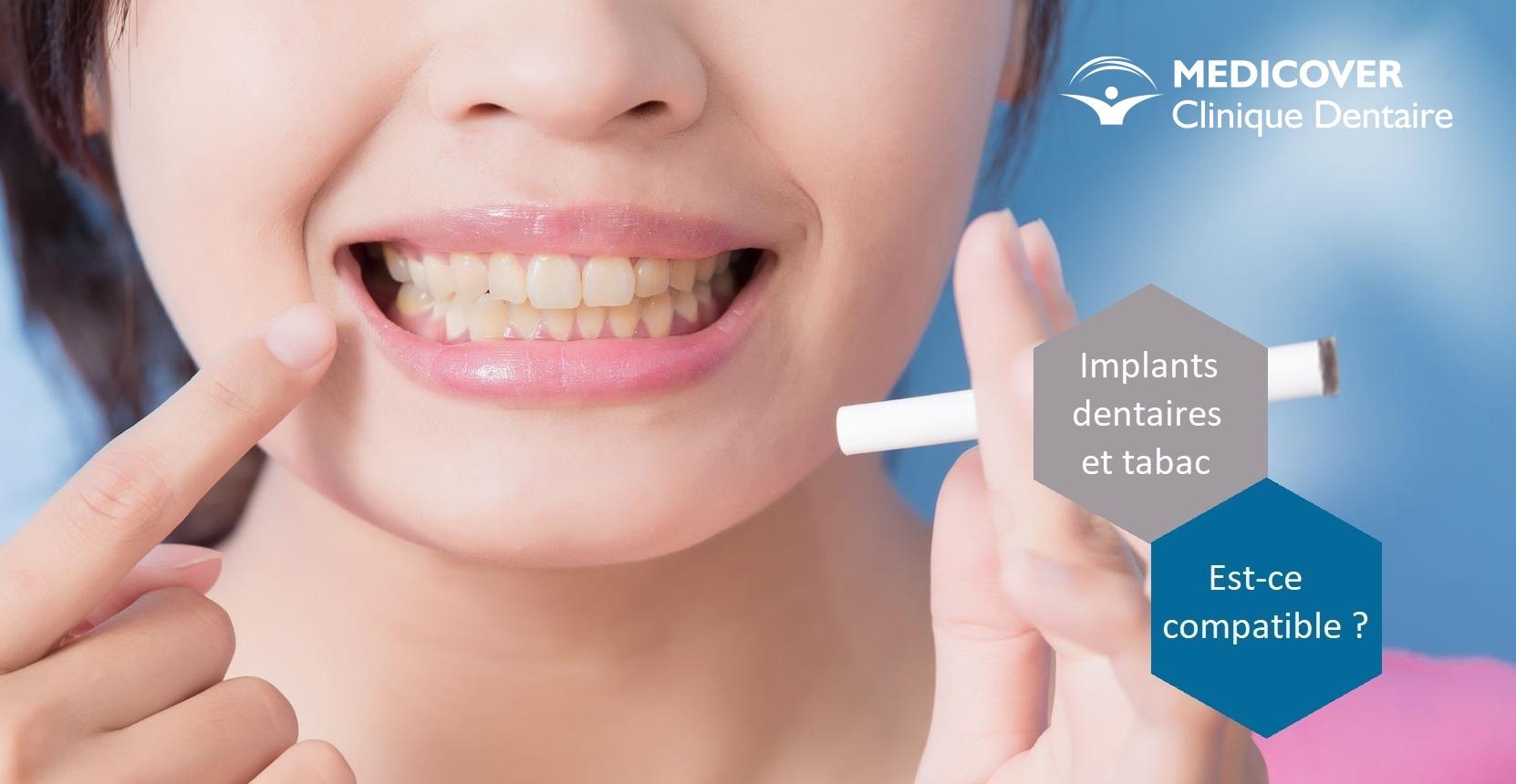 Implant dentaire : quels sont ses types ?